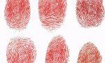 """指纹是人体身份证,天生没有指纹的人,会成为""""法外狂徒""""吗?"""